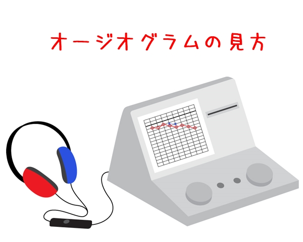 補聴器 オージオグラム 宇都宮